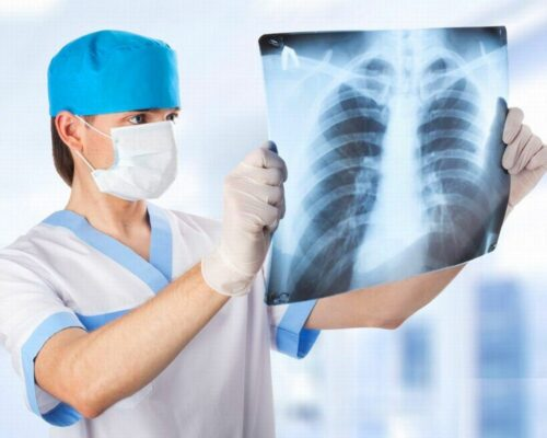 У Кропивницькому 51 людина захворіла на запалення легень.