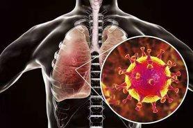 В Україні 2106 нових випадків COVID-19 за добу. Загалом від початку епідемії захворіли 100 643 особи.