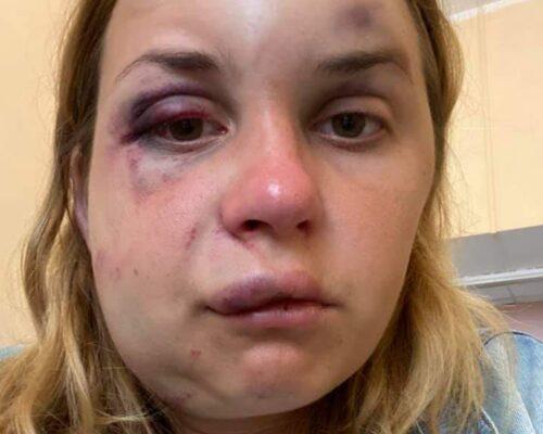"""У поїзді """"Маріуполь-Київ"""" жінку побили і намагалися зґвалтувати на очах у сина."""