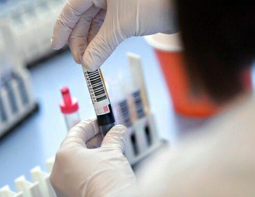 Степанов назвав приблизну ціну вакцини від коронавірусу.